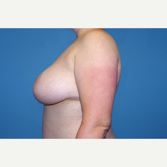 25-34 year old woman treated with Breast Reduction after 2998932