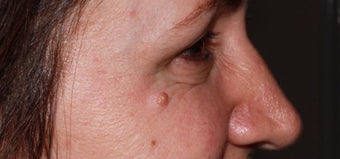 45-54 year old woman treated with Injectable Fillers after 3364502