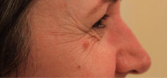 45-54 year old woman treated with Injectable Fillers before 3364502
