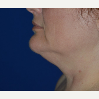 45-54 year old woman treated with Chin Liposuction before 3641457