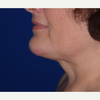 45-54 year old woman treated with Chin Liposuction after 3641457