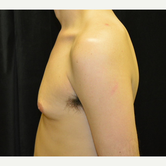 25-34 year old man treated with Male Breast Reduction before 3423933