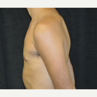 25-34 year old man treated with Male Breast Reduction after 3423933