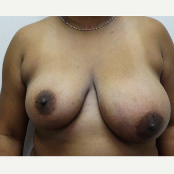 35-44 year old woman treated with Breast Reduction before 3704717
