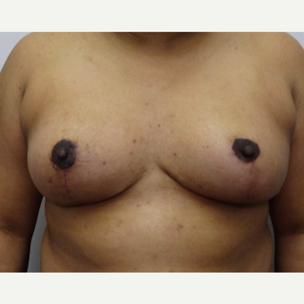 35-44 year old woman treated with Breast Reduction after 3704717