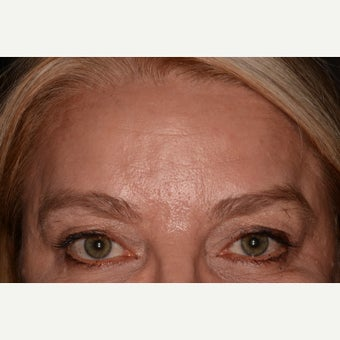 Botox and Belotero for eye lift and forehead lines