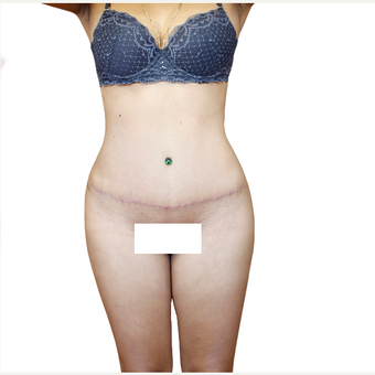 35-44 year old woman treated with Tummy Tuck after 3358754
