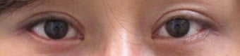 Bilateral Asian Blepharoplasty after 952537