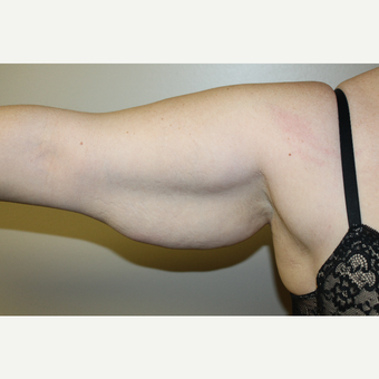 25-34 year old woman treated with Arm Lift before 3225146