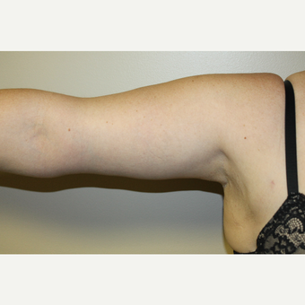 25-34 year old woman treated with Arm Lift after 3225146