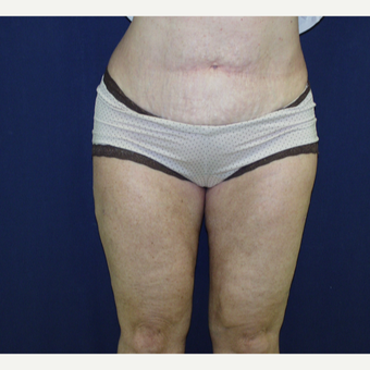 55-64 year old woman treated with Liposuction after 3147038