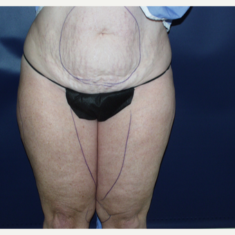 55-64 year old woman treated with Liposuction before 3147038
