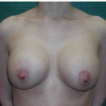 18-24 year old woman treated with Breast Implant Revision before 3376631