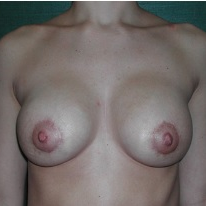 18-24 year old woman treated with Breast Implant Revision after 3376631