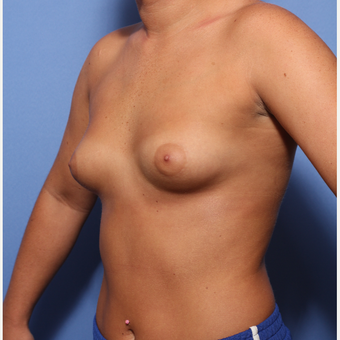18-24 year old woman treated with Breast Augmentation before 3505906