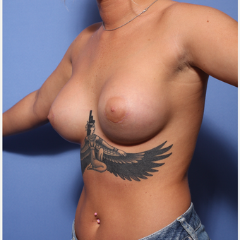 18-24 year old woman treated with Breast Augmentation after 3505906