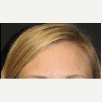 25-34 year old woman treated with Botox after 2076327