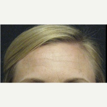 25-34 year old woman treated with Botox before 2076327