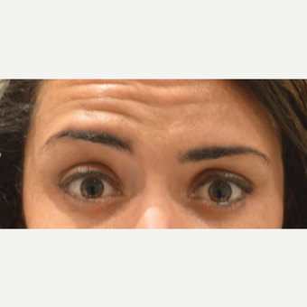 25-34 year old woman with uneven brows, treated with Botox before 3642154