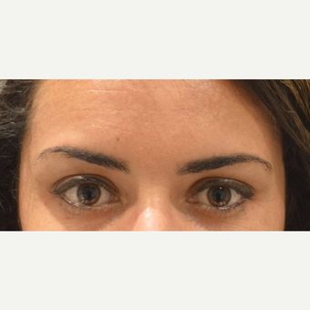 25-34 year old woman with uneven brows, treated with Botox after 3642154