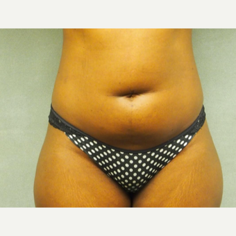 25-34 year old woman treated with Liposuction before 3076605