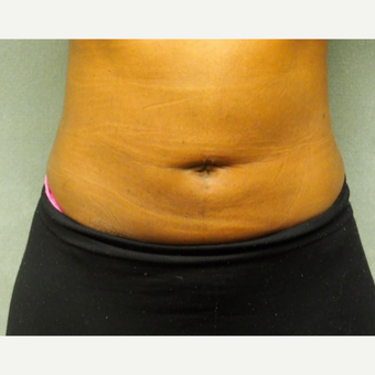 25-34 year old woman treated with Liposuction after 3076605