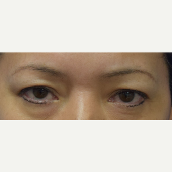 35-44 year old woman treated with upper Eyelid Surgery before 3048263