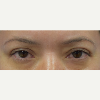 35-44 year old woman treated with upper Eyelid Surgery after 3048263