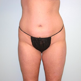 25 year old woman treated with Liposuction before 3442237