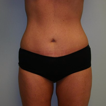 25 year old woman treated with Liposuction after 3442237