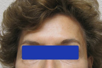 60 year old female treated with Botox for forehead lines before 821664
