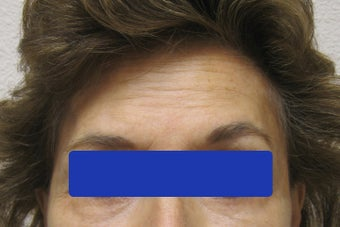 60 year old female treated with Botox for forehead lines after 821664
