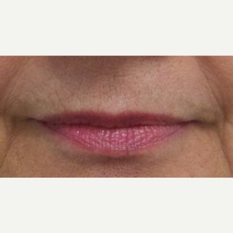 55-64 year old woman treated with Restylane Silk Lip Augmentation before 1704612