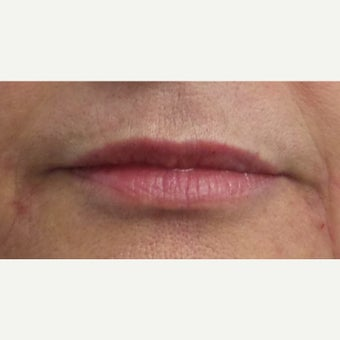 55-64 year old woman treated with Restylane Silk Lip Augmentation after 1704612