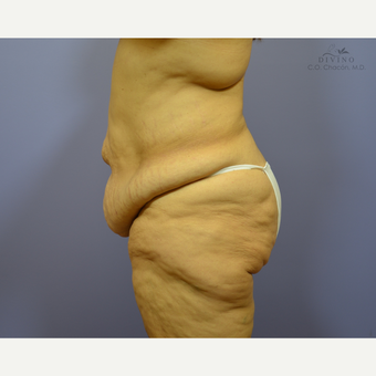 45-54 year old woman treated with Liposuction before 3391650