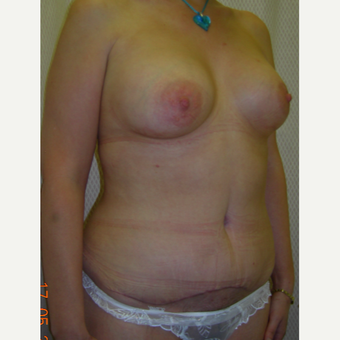 25-34 year old woman treated with Mommy Makeover after 3554698