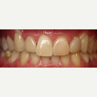 25-34 year old man treated with Dental Crowns before 3260755