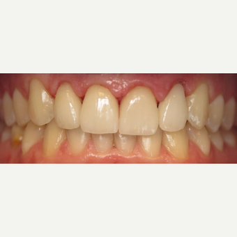 25-34 year old man treated with Dental Crowns after 3260755