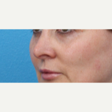 45-54 year old woman treated with Juvederm after 3340078