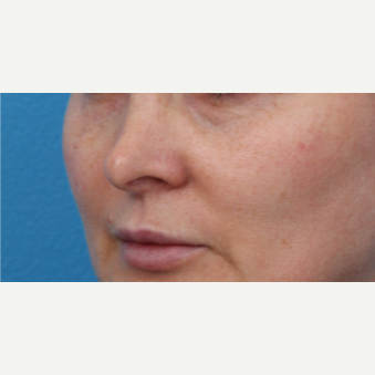 45-54 year old woman treated with Juvederm before 3340078