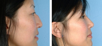 Asian Eyelid Surgery before 1208228