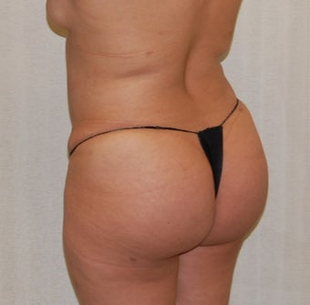 25-34 year old woman treated with Fat Transfer before 3163379