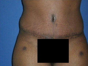 Tummy Tuck after 1326100