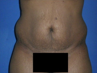 Tummy Tuck before 1326100