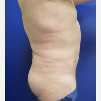 25-34 year old man treated with Liposuction after 3366407