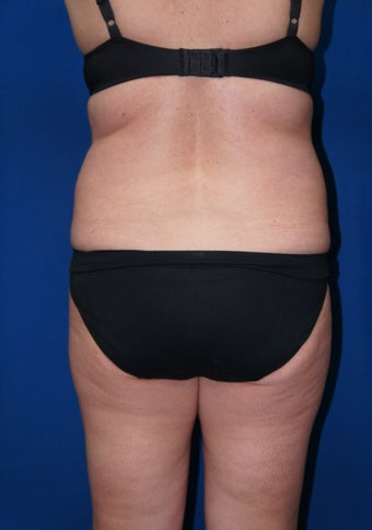 "Smart Lipo for back rolls and ""muffin top"" before 639092"