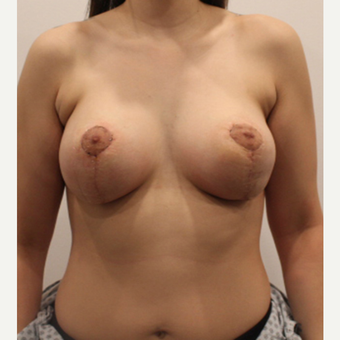 25-34 year old woman treated with Breast Lift after 3339424