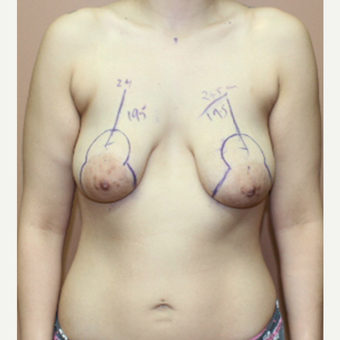 25-34 year old woman treated with Breast Lift before 3339424