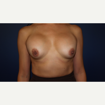 35-44 year old woman treated with Breast Implant Revision before 3384023