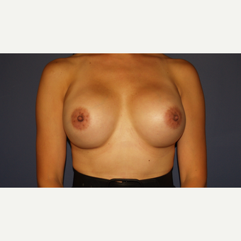 35-44 year old woman treated with Breast Implant Revision after 3384023